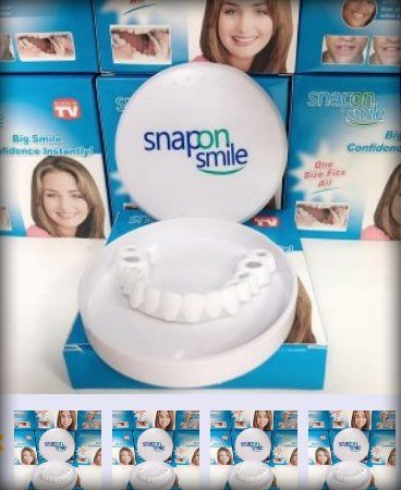 Виниры Snap-On Smile