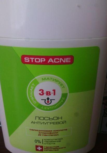 """Лосьон 3в1 """"Stop acne"""" антиугревой Активный килород 150мл"""