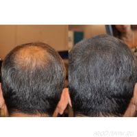 Загуститель для волос KeraLux